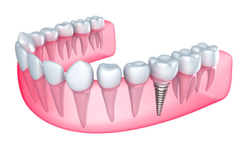 Symptoms of Dental Implant Rejection to Be on the Lookout For